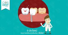 2016-0130-veneer-#cosdentbyslc-#makeoveryoursmile-#slcgroup (Dental clinic in Bangkok) Tags:             cosdentbyslc dental clinic bangkok