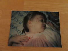 Chicken Pox on her Sleeping Face (evamadera) Tags: family chickenpox