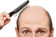 بالاخره ثابت شد کچل ها باهوش ترند (وبگردی) Tags: انسان بدن تعریق کچل مو هوش