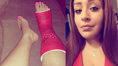 mrsv30 (cb_777a) Tags: broken leg ankle foot cast crutches toes usa