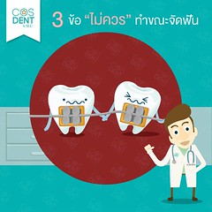 2015-0170 ข้อควรระวัง 3 ประการเวลาจัดฟัน#cosdentbyslc #makeoveryoursmile #slcgroup