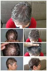 Avoir une restauration de cheveux et se débarrasser des problèmes de calvitie  http://fr.phaeyde.com/greffe-de-cheveux (phaeydeclinicfrance) Tags: hungary budapest clinic cheveux greffe phaeyde