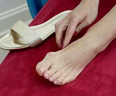 Schiefe Zehen und geschwollene Fußballen sind heilbar (prnews24) Tags: operation schräg fus krumm therapie geschwollen behandlung halluxvalgus