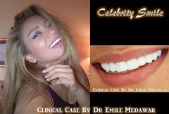 3rhollywood smile beirut lebanon00cx5 - Copy (Style Dental Clinic Beirut Lebanon) Tags: lebanon beirut dentist dentalclinic veneers teethwhitening dentalimplants perfectsmile gummysmile hollywoodsmile cosmeticdentist lumineers