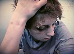 5/365: I Hope You're (emeryrose) Tags: boy portrait amanda black eye girl rose self photography hope blood model makeup gore conceptual beaten wounds bruises