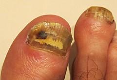 Tommy Taylor's traumatic tricolour toe-nails (JayT47) Tags: deleteme4 saveme1 deleteme6 deleteme10