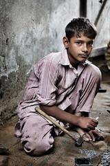 Strumenti chirurgici prodotti col lavoro minorile