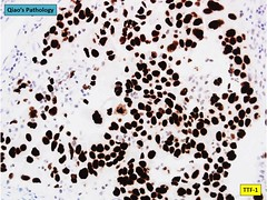 Qiao's Pathology: Adenocarcinoma of the Lung (Pulmonary Adenocarcinoma) (Qiao's Pathology (Art and Science in Medicine)) Tags: qiaos pathology adenocarcinoma lung pulmonary microscopic ihc ttf1