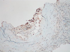 Adenocarcinoma; vascular invasion demonstrated by immunostains - Napsin A - Case 295 (Pulmonary Pathology) Tags: microscopic lung adenocarcinoma a immunostain napsin vascularinvasion