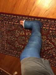 IMG_8966 (stlcrestfan) Tags: llc cast long leg broken
