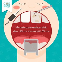 2015-0211 easy clean package #cosdentbyslc #makeoveryoursmile #slcgroup (Dental clinic in Bangkok) Tags:             cosdentbyslc dental clinic bangkok