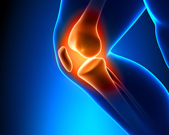 Asthijivak Knee Pain Relief Oil (tvtelemart) Tags: leg man pain knee male body hurt human femur black young joint xray tibia sport tendon strain muscle injury person health outdoor medical patient glowing painful outside fitness injured patella athlete jogging damaged massage running symptom recovery accident medicine training physical ligament arthritis healthcare czechrepublic