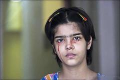دختر عجیبی که به جای اشک خون گریه می کند! (وبگردی) Tags: اشک خون دختر عجیب