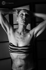 IMG_8735logo (zenimaging) Tags: cancer liver portrait seminude canoneosrebelsl1100d body figure health medicine