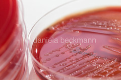 Streptococcus pyogenes (daniela beckmann) Tags: red macro blood labor kultur science laboratory bacteria cultures microbiology colonies germs macrophotography bakterien scarletfever streptococcus kolonien streptococcuspyogenes mikrobiologie makrofotografie bloodagar keime scharlach grampositive streptococcusgroupa