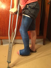 IMG_9027 (stlcrestfan) Tags: llc cast long leg broken