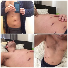 (antfactor nyc) Tags: ouch surgery healing hernia postop laparoscopic