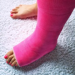 rasha_1293501462_n (cb_777a) Tags: broken leg ankle foot cast crutches toes israel palestine