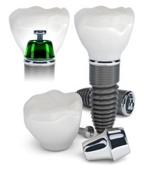Average Cost of Dental Implants (arthurglosman) Tags: dentist beverlyhills blog