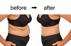 after a diet (annbedford) Tags: weight loss diet dieting fat slim slimming woman stomach weightloss success girl underwear isolated hip beforeafter achievement mass unhealthy line oversize fit obese cellulite torso people caucasian black liposuction female shape figure over healthy young care excess body person obesity overweight beforeandafter waist silhouette health bottom large belly big thailand