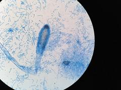 Aspergillus clavatus (fobpowder@gmail.com) Tags: aspergillus mycology fungus