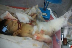 نوزادی که توسط موش ها خورده شد! + عکس (وبگردی) Tags: حوادث خوردهشد موشها نوزاد هند