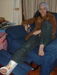 manda_2003 (cb_777a) Tags: broken leg ankle foot cast crutches toes australia