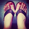 10724127_740405629330294_1154908604_n (castsandfeets) Tags: bunions hammertoes crookedtoes overlappingtoes