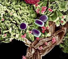 Plum Tree (FEI Company) Tags: fei microscopy nanotechnology nanoimage magnification feiimagecontest inspect lifesciences tissuebiology brushite calciumphosphate
