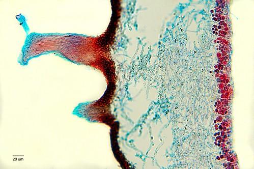 Foliose lichen thallus rhizines