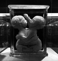 Preparations from the collection of Gerardus & Willem Vrolik (Miranda Ruiter) Tags: babies collection siamesetwins death preparations amc amsterdam