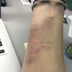 "I fell on Sunday while just trying to imagine a new skateboarding trick. It didn't really hurt, but look at the bruise days later!! Yikes! • <a style=""font-size:0.8em;"" href=""http://www.flickr.com/photos/99295536@N00/16972756369/"" target=""_blank"">View on Flickr</a>"