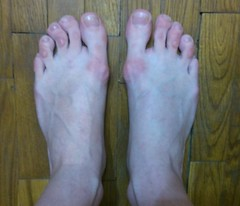 tatar girl's bunions (PawelIwaniak) Tags: feet blisters rough bunions callouses
