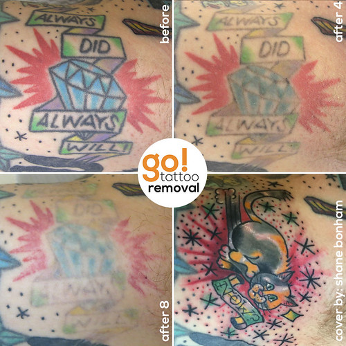 Tattoo Removal to Tattoo Cover-Up