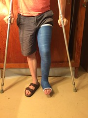 IMG_9047 (stlcrestfan) Tags: llc cast long leg broken