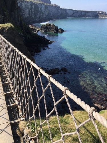 Carrick-a-rede, Rope Bridge