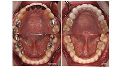 2016-0135-alekay-#cosdentbyslc-#makeoveryoursmile-#slcgroup (Dental clinic in Bangkok) Tags:             cosdentbyslc dental clinic bangkok