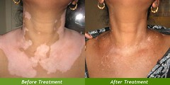 Vitiligo nb UVB Phototherapy and Remove White Spot (Renova Skin) Tags: vitiligo white patches skin nbuvb phototherapy body
