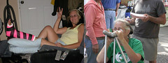 ygh_joined02 (cb_777a) Tags: broken leg ankle foot cast crutches toes usa