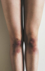 Rehearsal knees. (Daniela De la Rosa) Tags: selfportrait girl self skinny dance legs danza 365 baile bruises piernas moretones