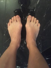 Chinese girl's bunions (PawelIwaniak) Tags: feet girl chinese bunions