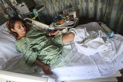 ZA_900x600 (cb_777a) Tags: amputee disabled handicapped onelegged accident usa